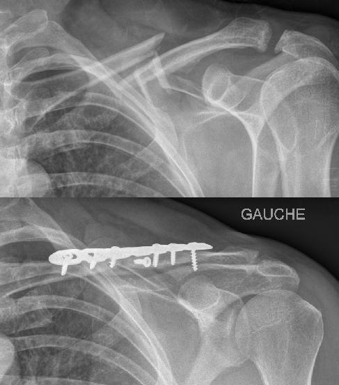 les fractures de la clavicule   epaule Toulouse